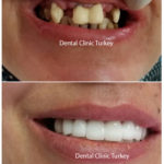 dental implant for woman and crown