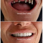 full mouth implant for upper jaw