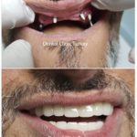 full mouth implants for upper and lower jaw