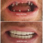 full mouth implant with pfm crown