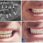 full mouth dental implants for man