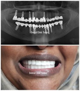 full mouth dental implant for woman