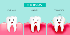 Gum Disease and Periodontitis