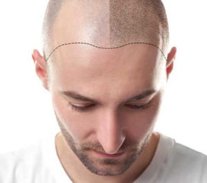 hair transplantation center turkey