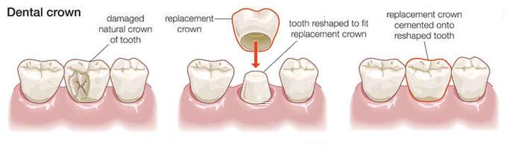 Porcelain Crowns Procedure
