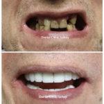 smile makeover 8