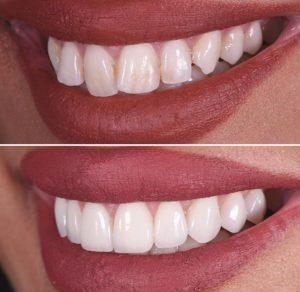 dentiste turquie