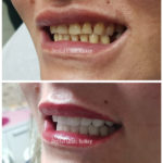 smile makeover design antalya