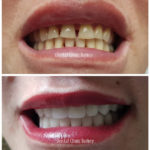 smile makeover design turkey