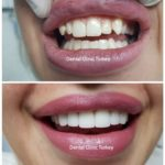 smile makeover design 3