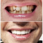 smile makeover turkey antalya