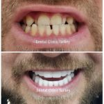 smile makeover turkey for man