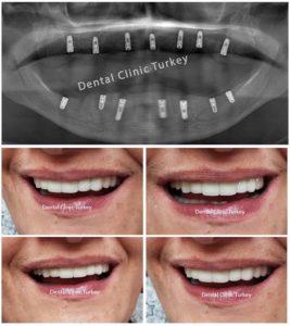 Implants dentaires mâchoire complète turquie