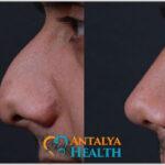 rhinoplasty for men nosejob
