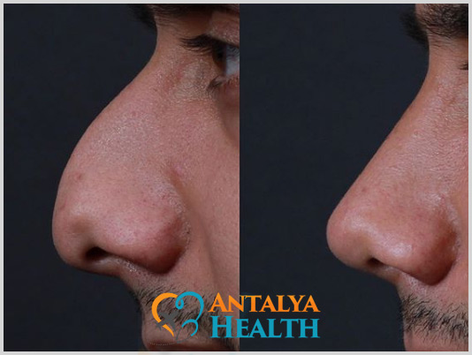 rhinoplasty for men nosejob