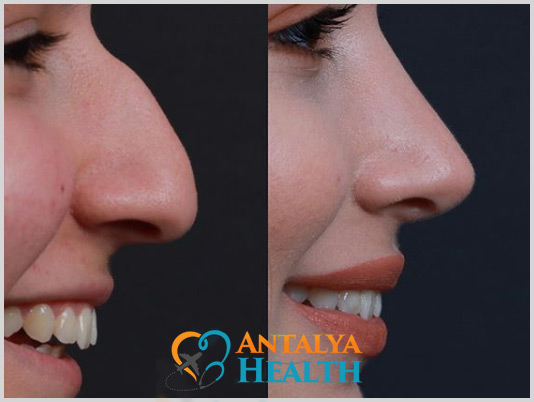 rhninoplasty for woman in turkey