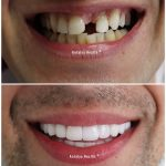 smile design with porcelain crown 33