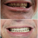 emax veneer treatment