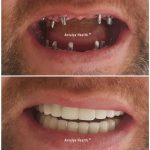 full mouth implant treatment for man