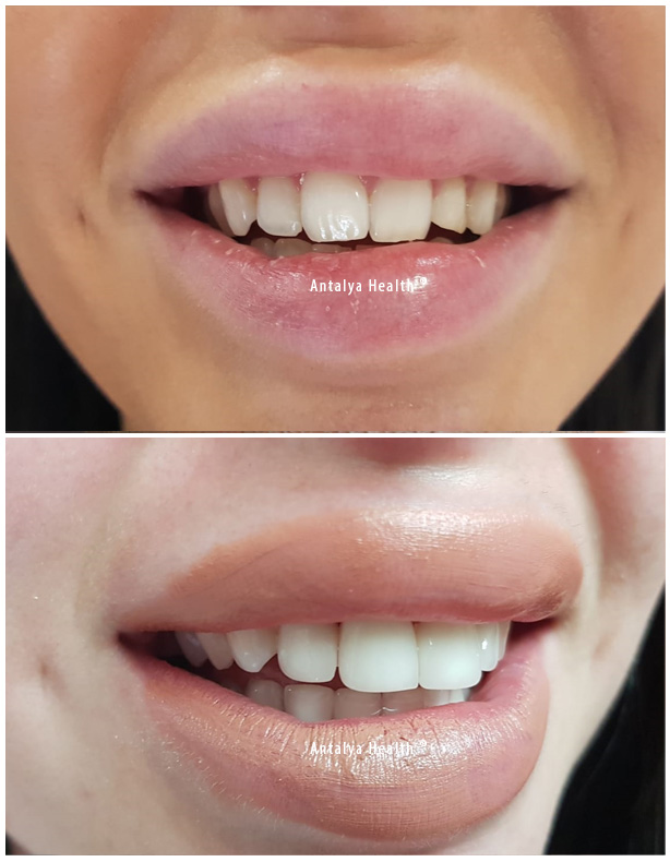 zirconium crown for hollywood smile