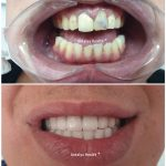 special treatment for upper and lower jaw