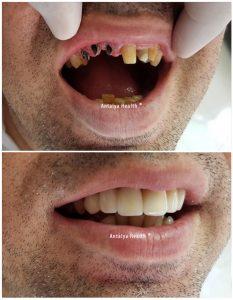seule dent