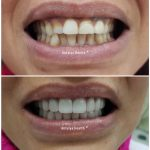 zirconium crown in turkey for woman