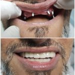 implant treatment for full mouth