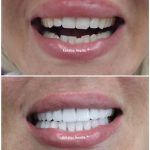 hollywood smile with porcelain crown and veneer