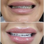 smile design and lip aesthetics