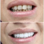 zirconium crown and anterior dental aesthetics