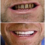 porcelain crowns for broken teeth 33