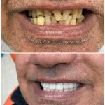 veneers for broken teeth
