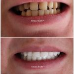 closing dental cavities with zirconium crowns