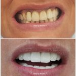 smile design with porcelain crown 25