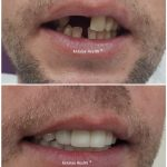 upper and lower jaw dental treatment with porcelain crown