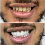 smile design with zirconium crown 65