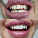 smile design with porcelain crown