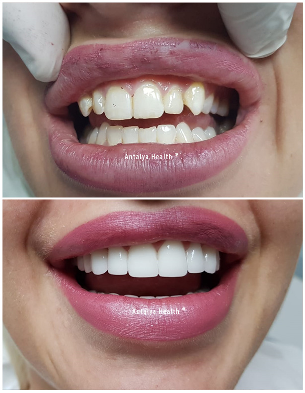 smile design with porcelain and zirconium crown