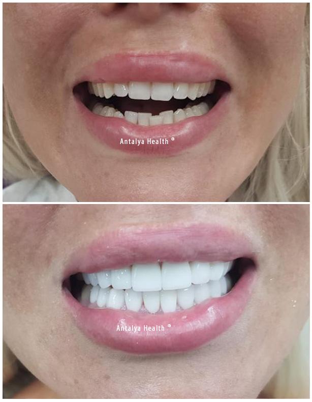 emax veneers and smile design