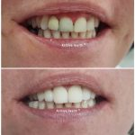 zirconium crown treatment