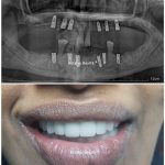 full mouth implant and porcelain fused metal crown on implant