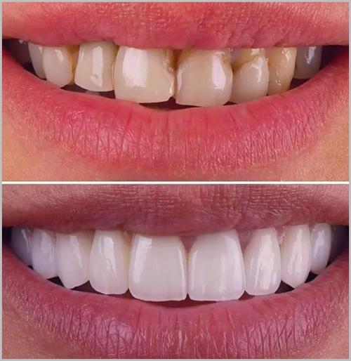 dentisterie esthétique en Turquie