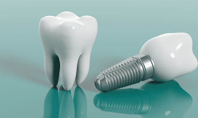 Implant dentaires