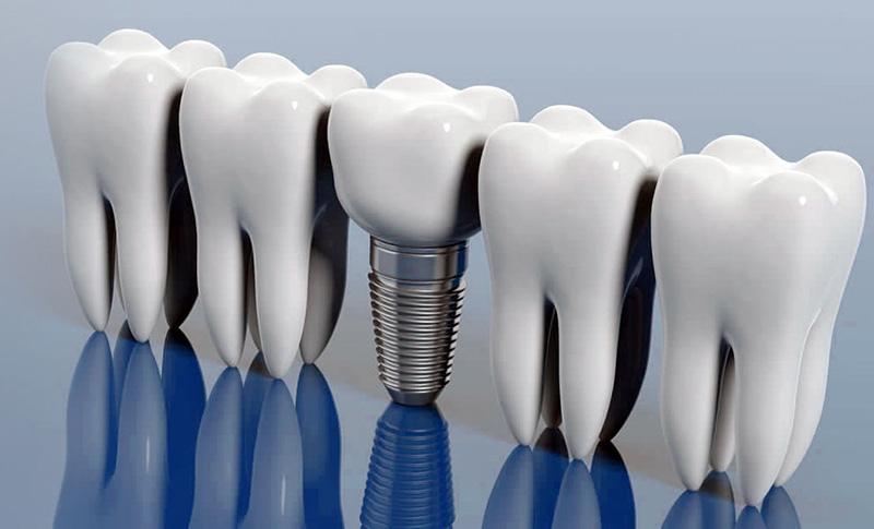 Combien coûtent les implants dentaires