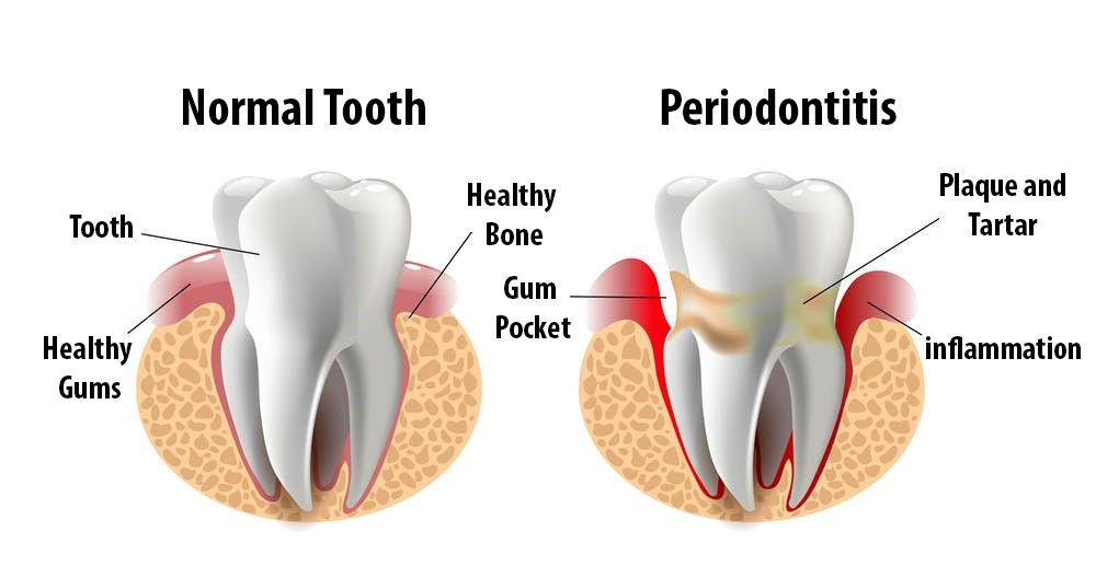 Tooth Replacement Method