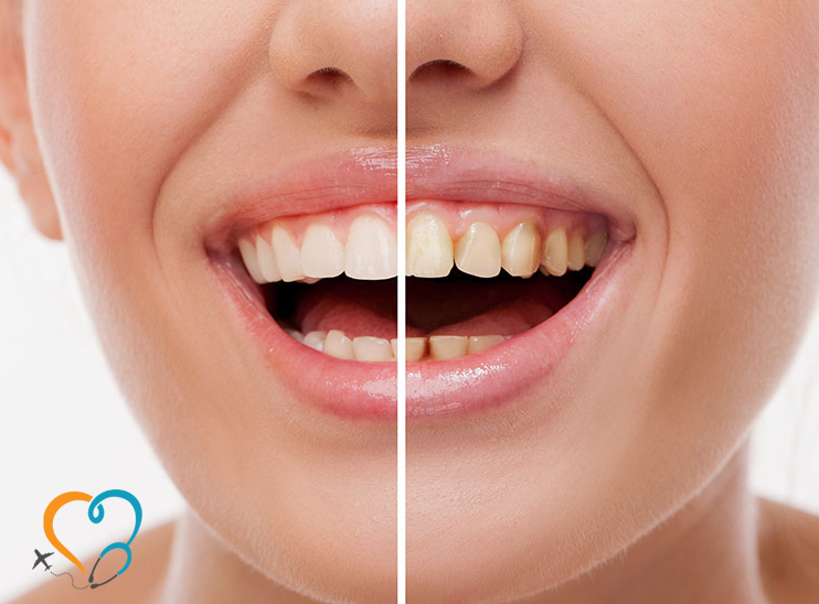 Tooth Replacement UK