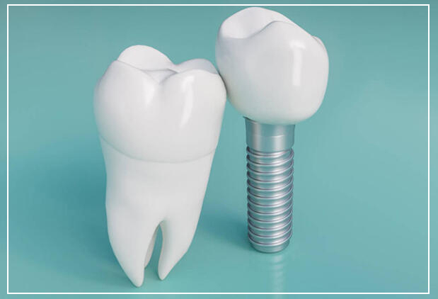 after dental implants surgery