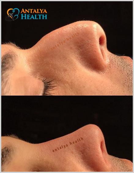nose aesthetics surgery