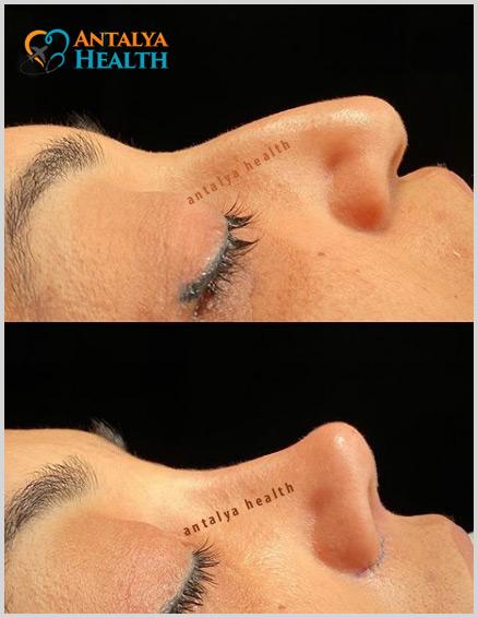 revision surgery nosejob
